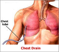 chest tube insertion images